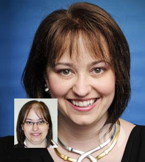 Female Hair Loss Treatments - Pittsburgh, PA