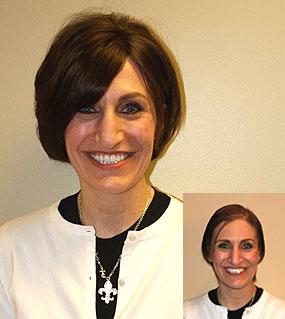 Dermal Lens Hair Replacement for Women - Pittsburgh, PA