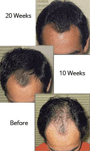 Laser Hair Therapy Treatment - Pittsburgh, PA