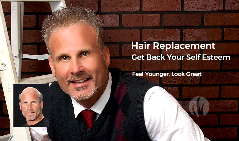 Men's Dermal Lens Hair Replacement - Pittsburgh, PA