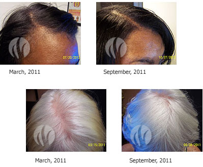Female Laser Hair Therapy - Pittsburgh, PA